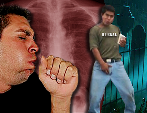 Deadly Strain of Tuberculosis Hits U.S.
